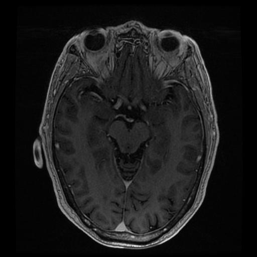 http://zhurnaly.com/images/MRI/B0203.jpg