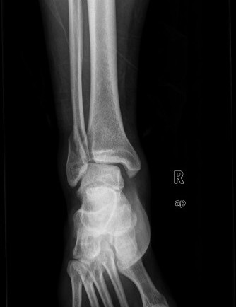 Fibula_ankle_xray_1