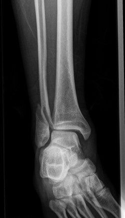 Fibula_ankle_xray_2
