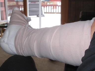 ankle_bandaged