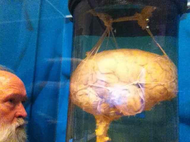 http://zhurnaly.com/images/NMHM_brain_vat_1.jpg