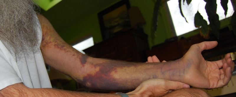 http://zhurnaly.com/images/bruised_arm_day_15a.jpg