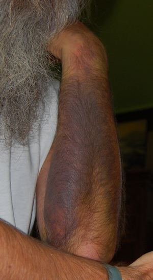 http://zhurnaly.com/images/bruised_arm_day_15b.jpg