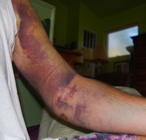 http://zhurnaly.com/images/bruised_arm_day_3.jpg
