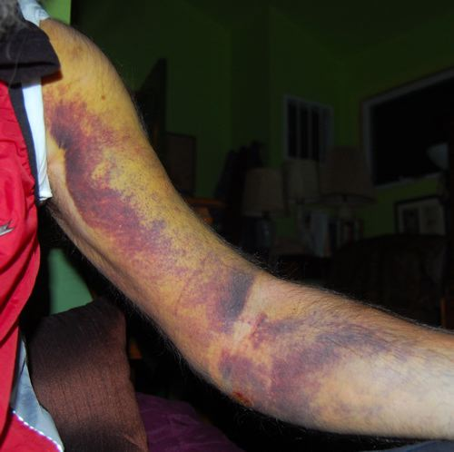 http://zhurnaly.com/images/bruised_arm_day_5.jpg