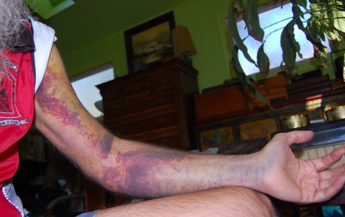 http://zhurnaly.com/images/bruised_arm_day_9.jpg