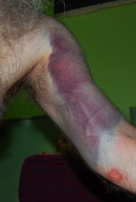 http://zhurnaly.com/images/bruised_left_arm.jpg