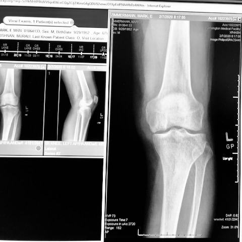 fractured femur overview