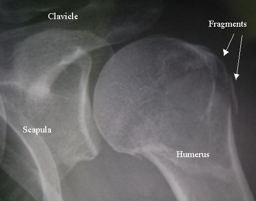 http://zhurnaly.com/images/fractured_humerus.jpg