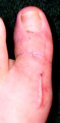 FrankenToe scars