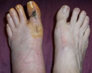 Two Franken-feet - click for larger image
