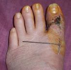 k-wire and Franken-toe - click for larger image